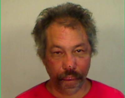 Man Arrested for Biting Off Fellow Camper's Finger